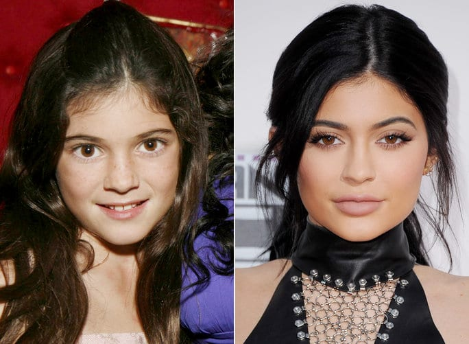 kylie-then now