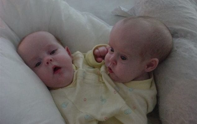 conjoined twins