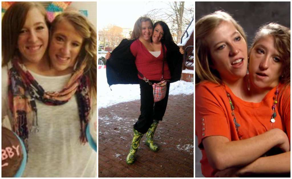 20 interesting facts about a girl with two heads Abby and Brittany Hensel